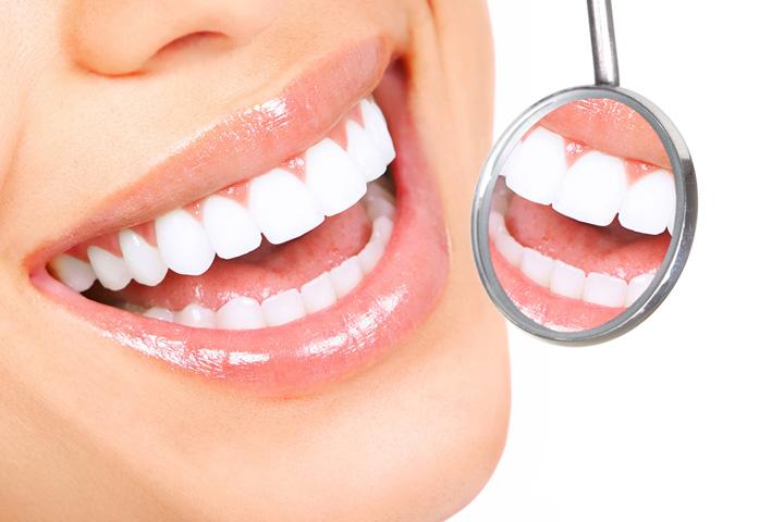 Izbjeljivanje zuba udlagom