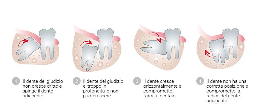 Alveotomia